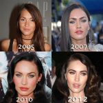 Megan Fox Before and After Plastic Surgery: A Tale of Evolution