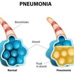 Homeopathic Remedies for Pneumonia